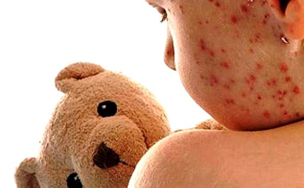 Febre e exantema são sintomas do sarampo (Foto da web: prevenirclinicadevacinas.com.br)