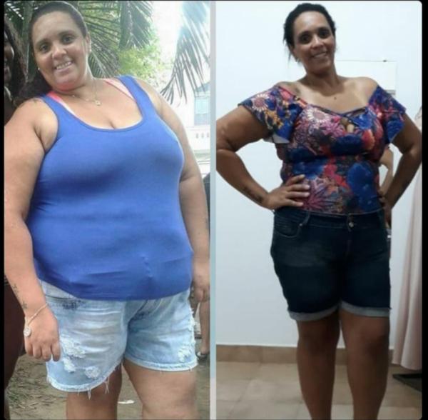 Vivian Aparecida antes e depois da cirurgia (Arquivo pessoal)